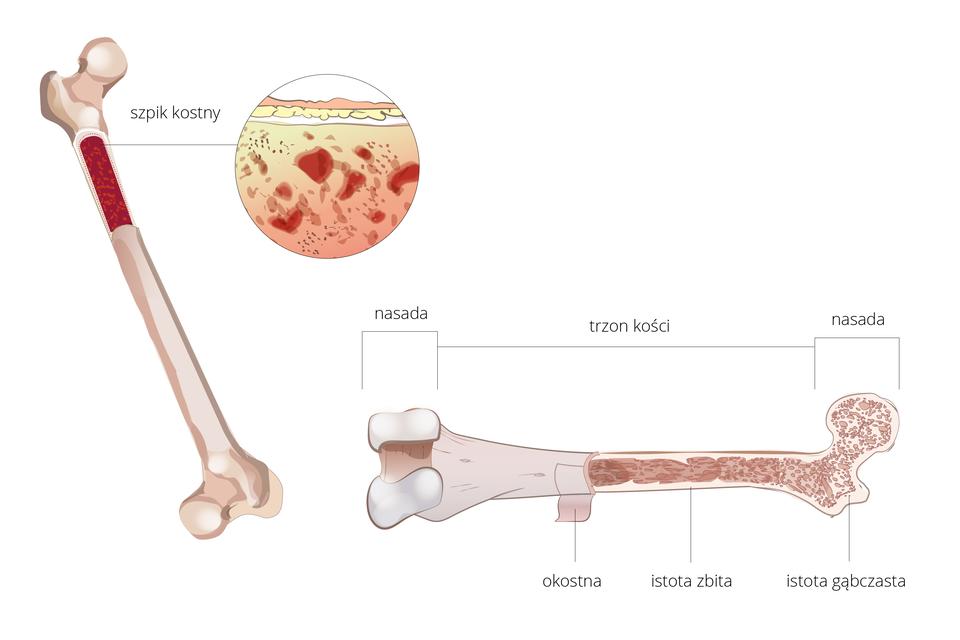 Schemat przedstawiający budowę kości udowej człowieka zzaznaczoną komorą szpikową ipowiększeniem szpiku kostnego po prawej stronie