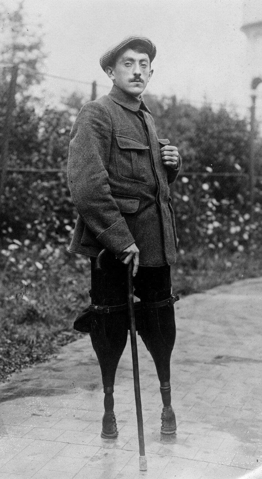 Żołnierz francuski, który stracił podczas wojny obie nogi Źródło: Żołnierz francuski, który stracił podczas wojny obie nogi, Fotografia, Biblioteka Kongresu Stanów Zjednoczonych, domena publiczna.