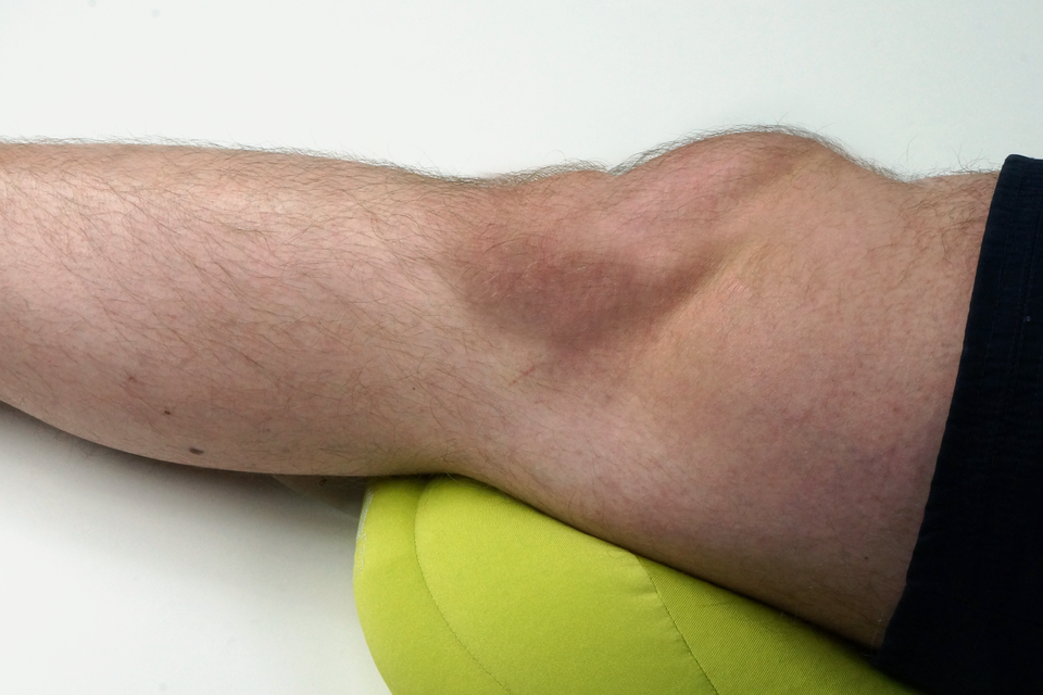 Galeria przedstawia przykłady zwichnięć kończyn. Drugie zdjęcie prezentuje nogę od połowy łydki do połowy uda wspartą na poduszce, wyprostowanej nogi. Kolano ma nieprawidłowy obrys, zprawej strony jest wyższe, niż powinno iopuchnięte.