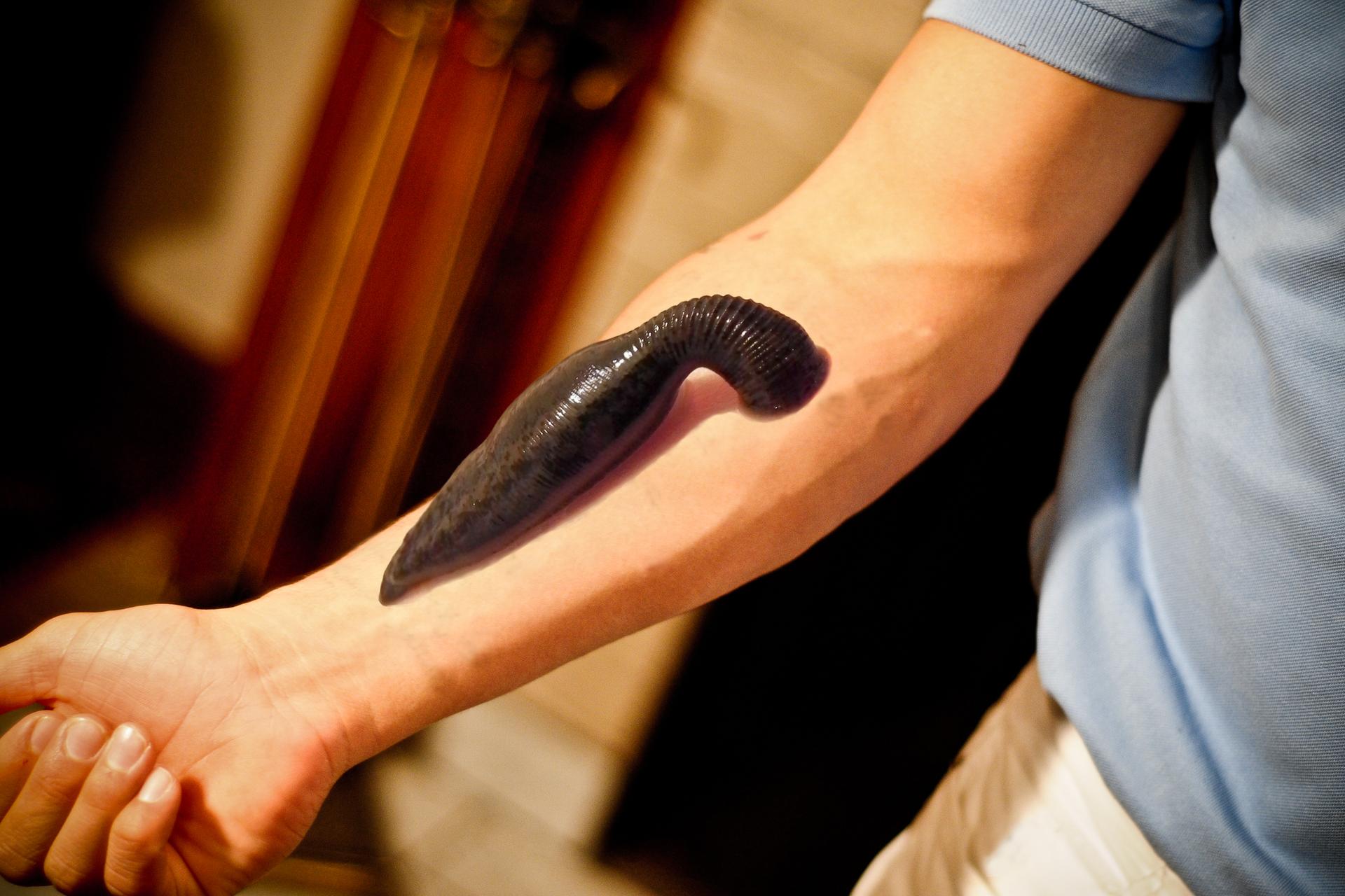 Fotografia przedstawia rękę człowieka zprzyssaną pijawką amazońską. Pijawka jest duża, ciemnobrązowa izgrubiała wśrodkowej części.