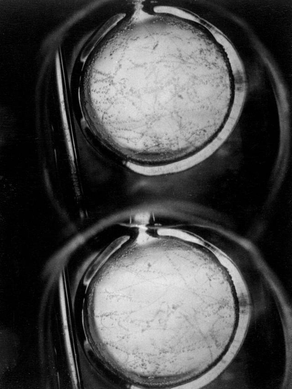Ilustracja przedstawia komorę pęcherzykową. Ilustracja czarno-biała. Tło czarne. Komora kształtem przypomina otwarty kieszonkowy zegarek. Wnętrze obu części jest jasnoszare. Widoczne są na nich krótkie ciemne paski złożone zmałych punkcików. Paski są nieregularnie rozmieszczone na całej powierzchni obu części.