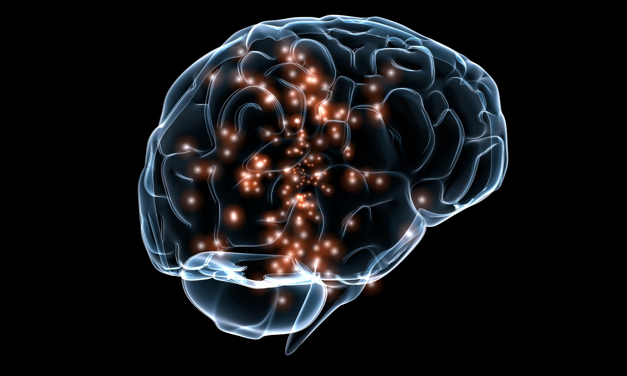 Aktywność neuronalna Aktywność neuronalna Źródło: Massachusetts General Hospital, domena publiczna.