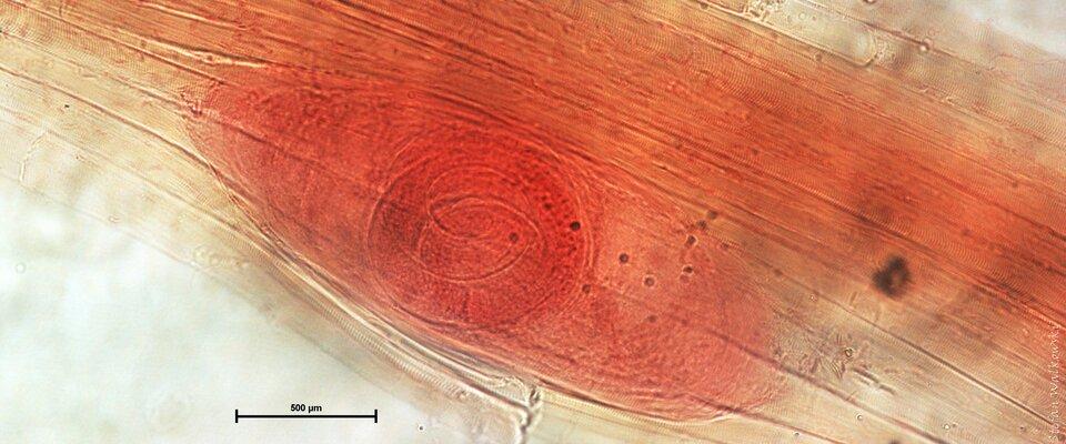 Fotografia mikroskopowa przedstawia podłużną cystę włośnia krętego wmięśniu świni. Cysta jest ułożona ukośnie, wzdłuż włókiem mięśnia. Jej wielkość można ocenić za pomocą podziałki na dole fotografii: 500 mikrometrów, czyli pół milimetra.