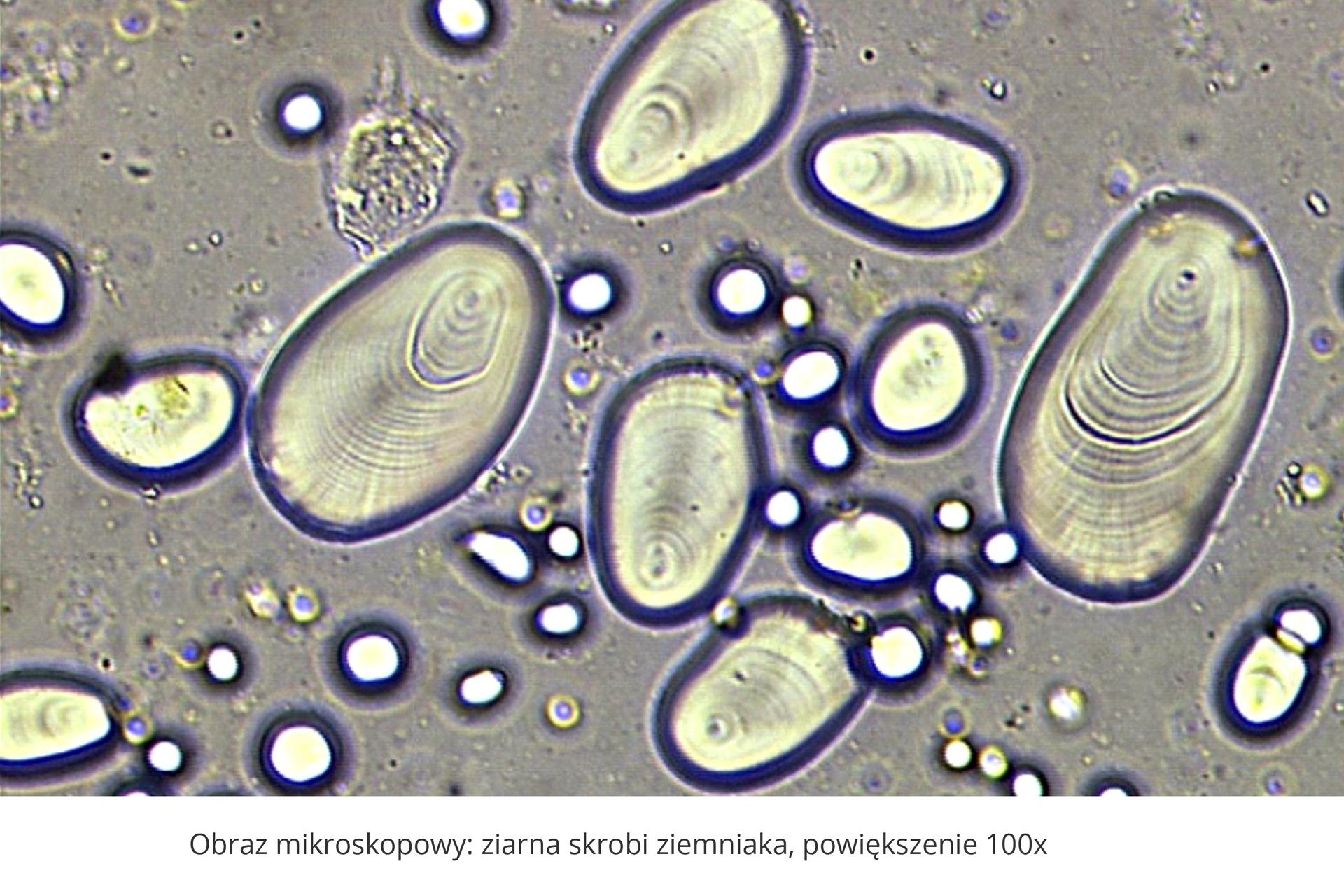 Ilustracja przedstawia obraz mikroskopowy ziaren skrobi zbulwy ziemniaka. Ziarna są jajowate, załamują światło, które tworzy wokół nich grube fioletowe linie. Drobniejsze owalne plamy to zanieczyszczenia preparatu.