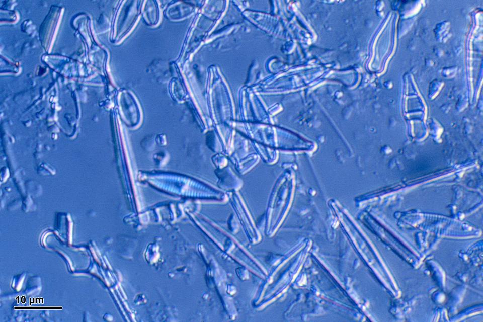 Obraz mikroskopowy okrzemek. Widoczne pojedyncze komórki izgrupowania kolonijne. Opalizująca ściana komórkowa zwyraźnym rysunkiem urzeźbienia.