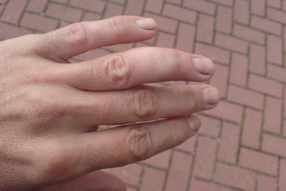 Galeria przedstawia przykłady zwichnięć kończyn. Pierwsze zdjęcie prezentuje lewą dłoń widzianą zgóry. Palce wyprostowane, palec serdeczny wygięty pod nienaturalnym kątem iwyraźnie opuchnięty powyżej stawu.