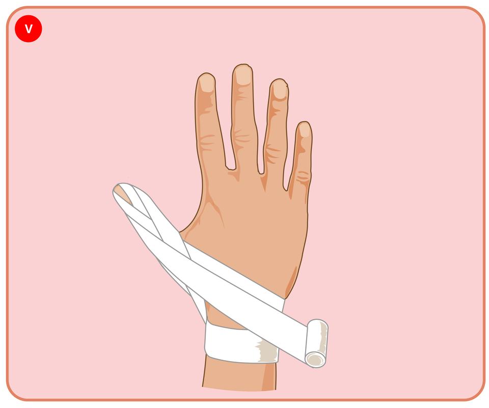 Pokaz slajdów prezentujących kolejne etapy bandażowania kciuka opatrunkiem kłosowym.