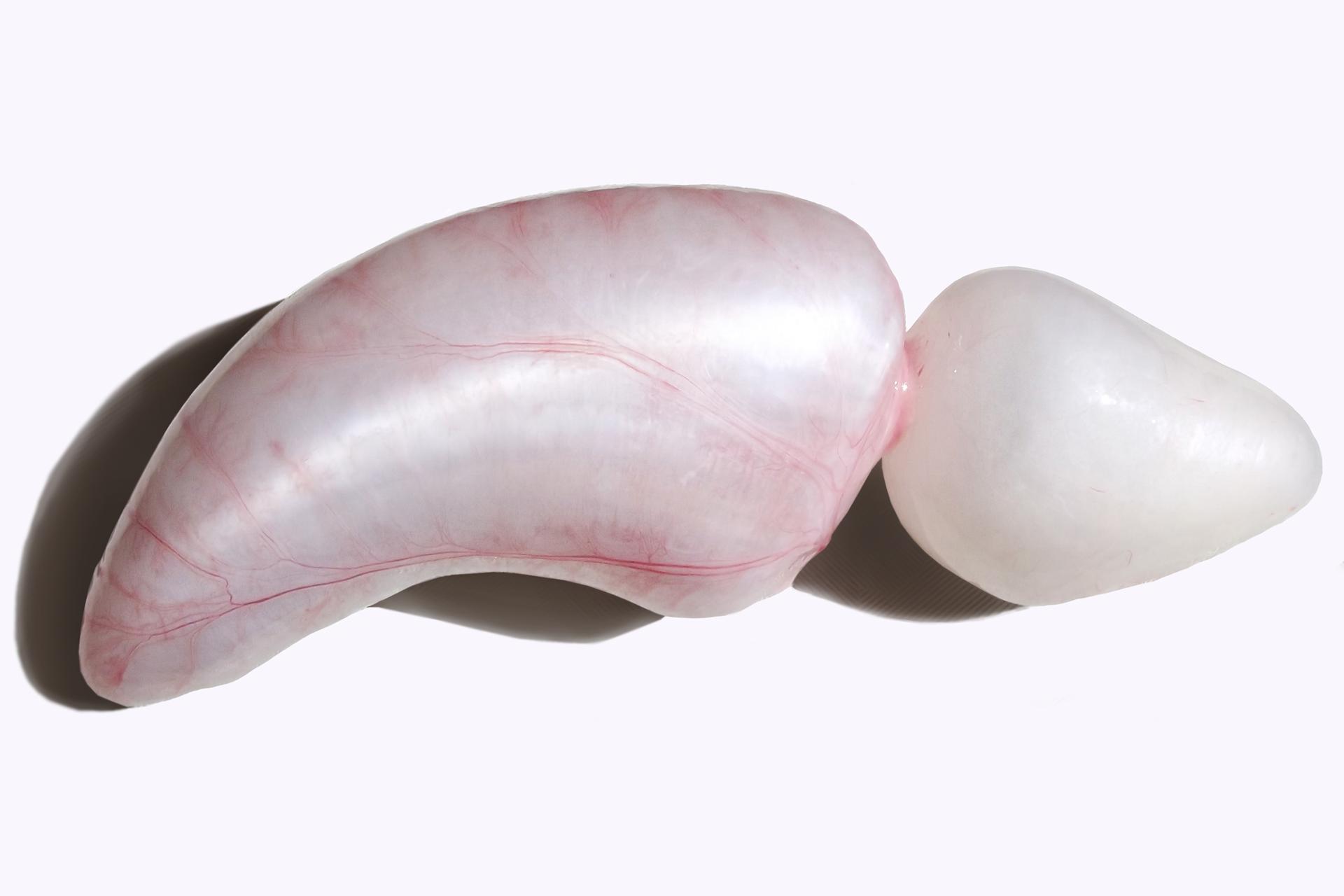 Zdjęcie pęcherza pławnego ryby. Przypomina on wydłużony biały balon pokryty różowymi liniami. Wprzedniej części po prawej stronie znajduje się przewężenie.