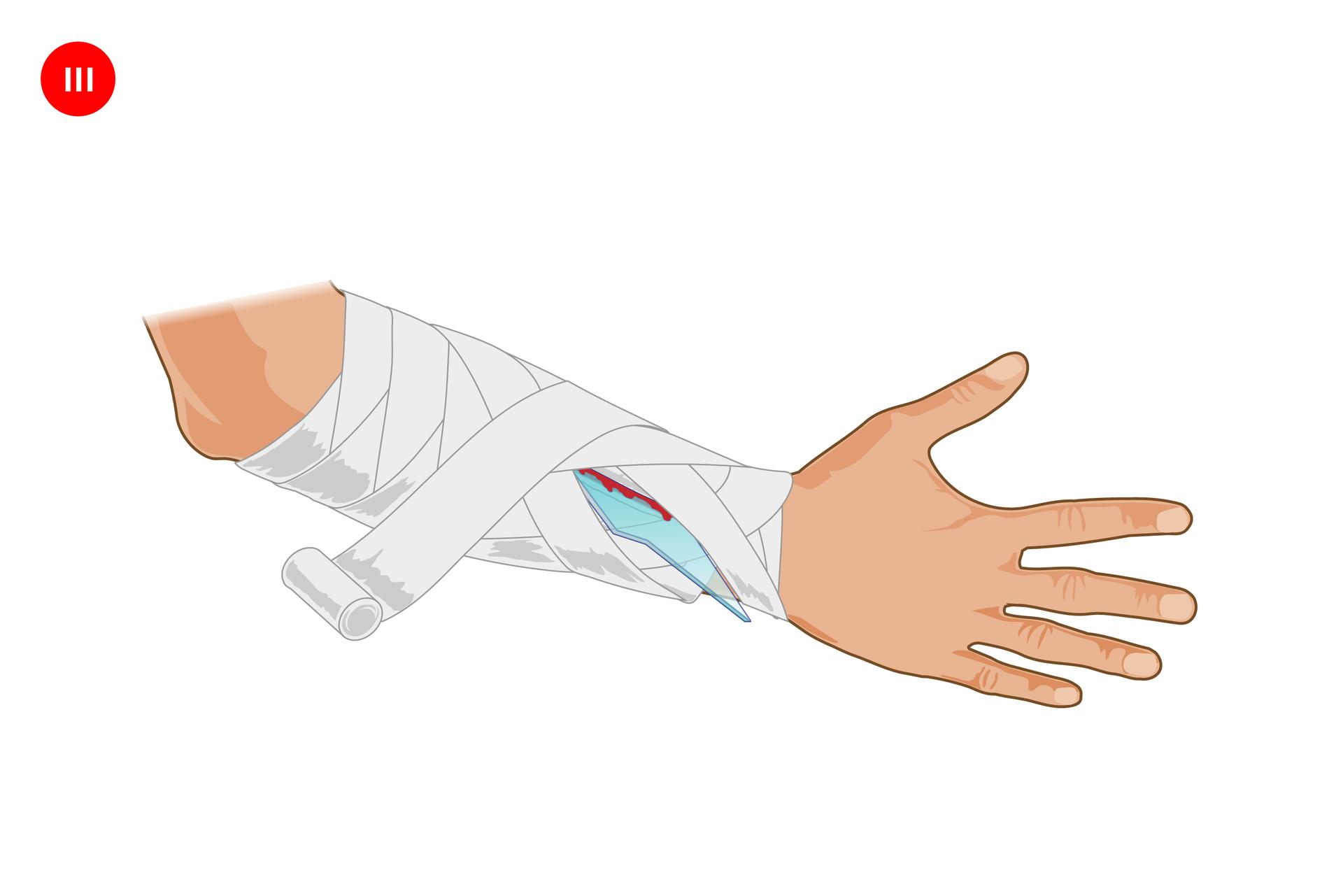 Galeria składa się ztrzech ilustracji prezentujących sposób opatrywania rany zciałem obcym. We wszystkich trzech przypadkach na ilustracji prezentowana jest prawa ręka skierowana zewnętrzną stroną do obserwatora, zwyprostowanymi palcami po prawej stronie. Powyżej nadgarstka podłużne miejsce zranienia zwbitym kawałkiem szkła tkwiącym pionowo wranie. Na trzecim obrazku rana jest zabandażowana wraz zcałym przedramieniem . Bandaż nawinięty wstylu na kłos.