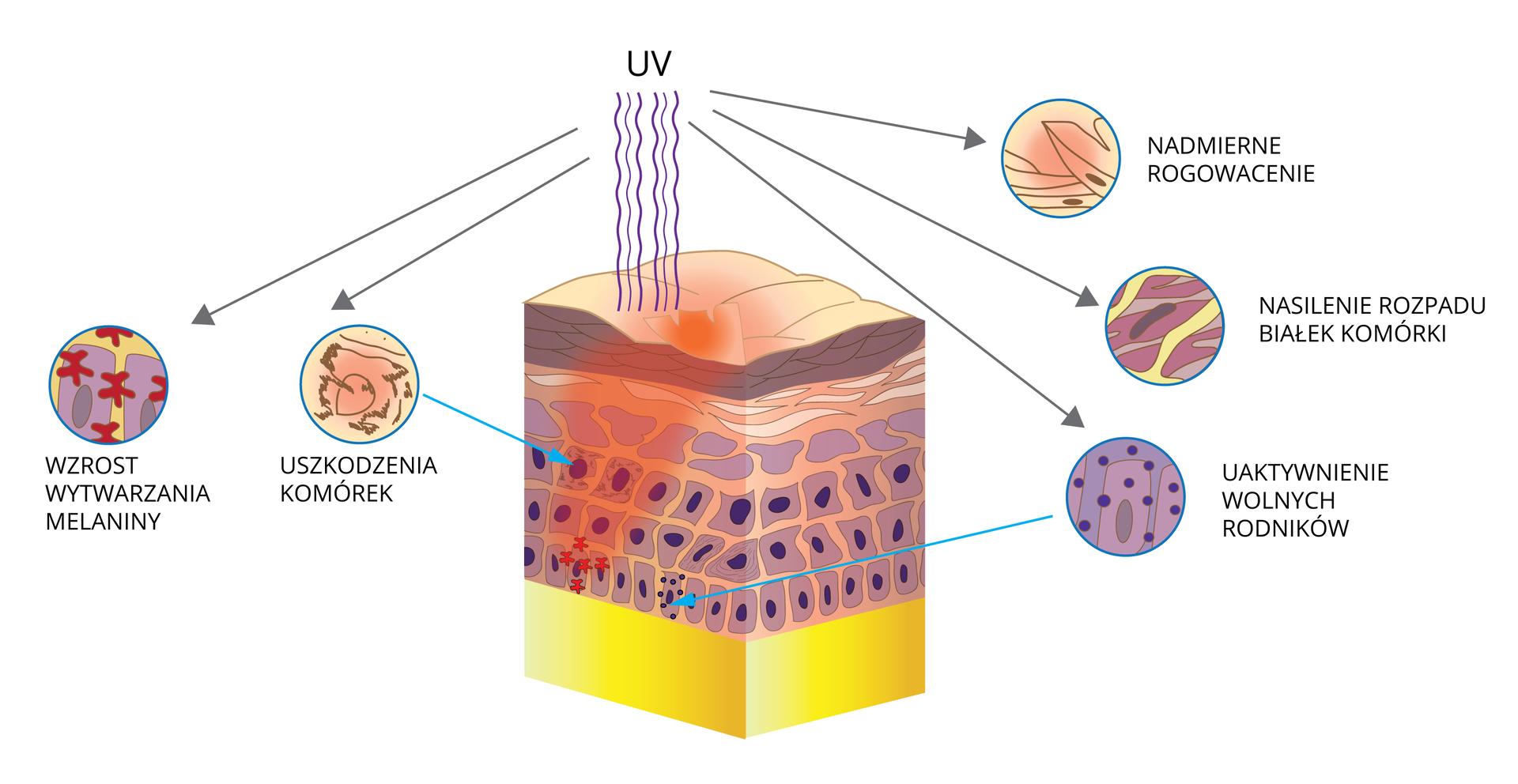 Ilustracja przedstawia schematycznie wpływ promieniowania UV na skórę. Wcentrum znajduje się duży sześcian, ilustrujący przekrój skóry. Od góry wjego wierzchnią warstwę uderzają faliste, fioletowe linie, czyli promienie ultrafioletowe. Wokół przekroju umieszczono kolejno powiększenia, ilustrujące uszkodzenia skóry przez promieniowanie ireakcję na nie. Strzałki wskazują miejsce, opisane przy powiększeniu. Od góry od lewej przedstawiono uszkodzenie komórek. Komórka ma brązowe, poszarpane brzegi ,jasnoróżowe jądro komórki jest odsłonięte. Następuje wzrost wytwarzania melaniny. Symbolizują to czerwone gwiazdki pomiędzy fioletowymi, kwadratowymi ścianami komórek. Trzecie kółko przedstawia uaktywnienie wolnych rodników. Zliliowych komórek unoszą się fioletowe kropki. Następnie ilustracja nasilonego rozpadu białek komórki. Kilka liliowych pasm jest przeciętych żółtymi pasmami. Po prawej ugóry ukazano nadmierne rogowacenie. Brązowe łuski to najstarsze komórki, ale zjądrami . Niektóre zadzierają się do góry. Na powierzchni skóry wskazano, że wtym miejscu wyraźnie się zapada.