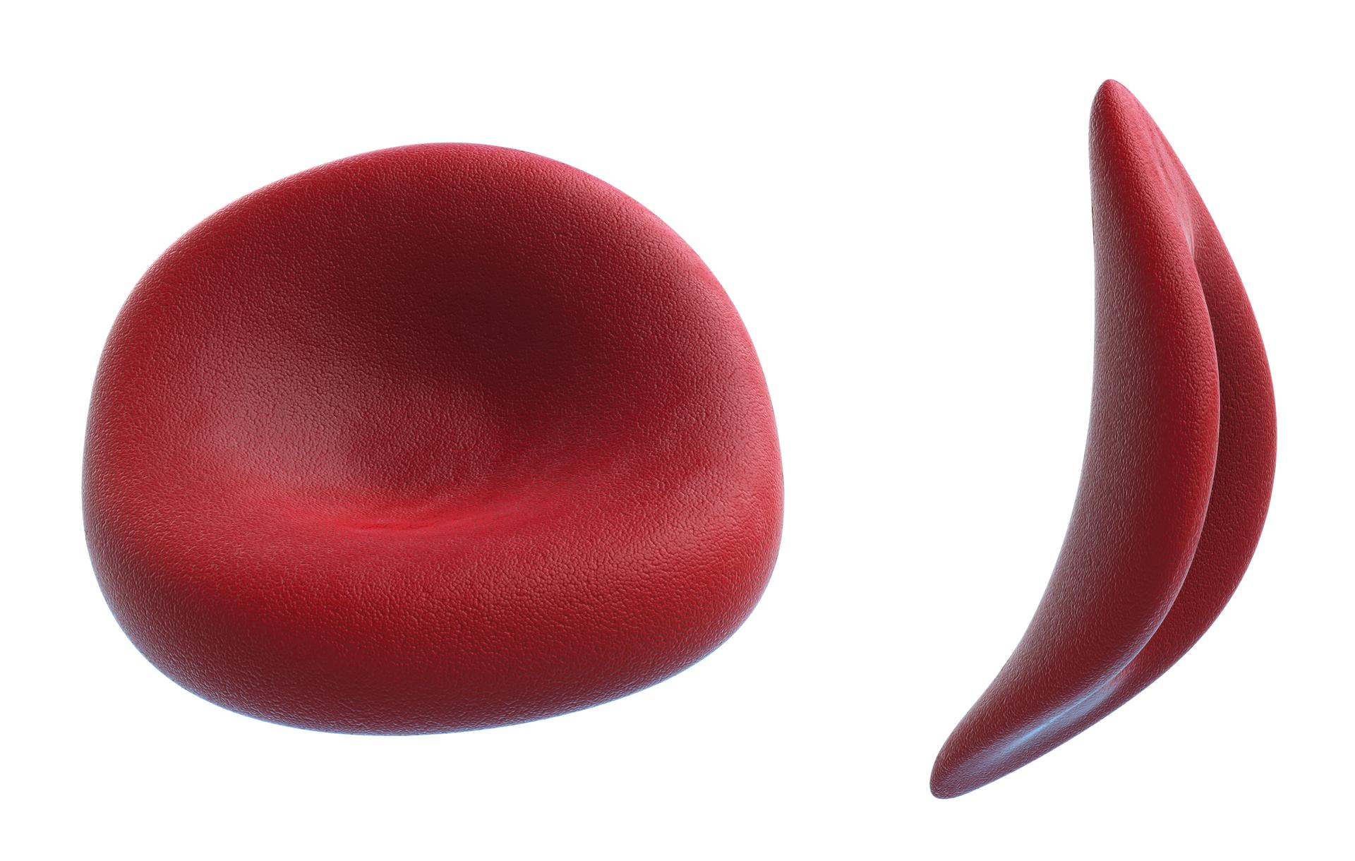 Ilustracja przedstawia dwa powiększone czerwone erytrocytyczłowieka. Zlewej prawidłowy, zprawej sierpowaty uczłowieka chorego na anemię sierpowatą.