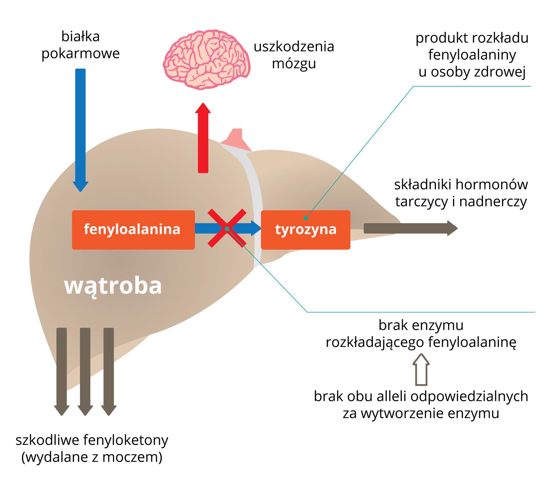 Ilustracja przedstawia wątrobę iszlak przemiany fenyloalaniny. Gdy brak enzymów przetwarzających fenyloalaninę na tyrozynę, dochodzi do uszkodzenia mózgu.