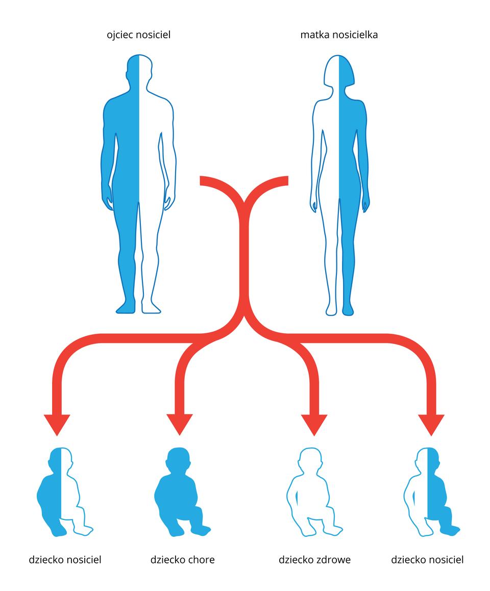 Ilustracja przedstawia schematycznie dziedziczenie mukowiscydozy. Ugóry sylwetka mężczyzny ikobiety, każda wpołowie niebieska. Oznacza to, że ludzie ci są nosicielami zmutowanego genu mukowiscydozy. Czerwone strzałki wskazują sylwetki dzieci, potomstwa tej pary. Sylwetka wpołowie niebieska oznacza nosiciela, cała niebieska dziecko chore abezbarwna to dziecko zdrowe.