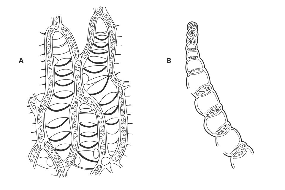 Ilustracja wkolorze szarym przedstawia dwa przekroje przez listki torfowca: zgóry izboku. Po lewej siatkowata struktura zwydłużonymi tworami zlicznymi pęcherzykami. Między nimi łódkowate otwory wścianach komórkowych. Po prawej podłużny twór, złożony na przemian zgrubszych, czworokątnych komórek ogrubych ścianach icienkich komórek zpęcherzykami.