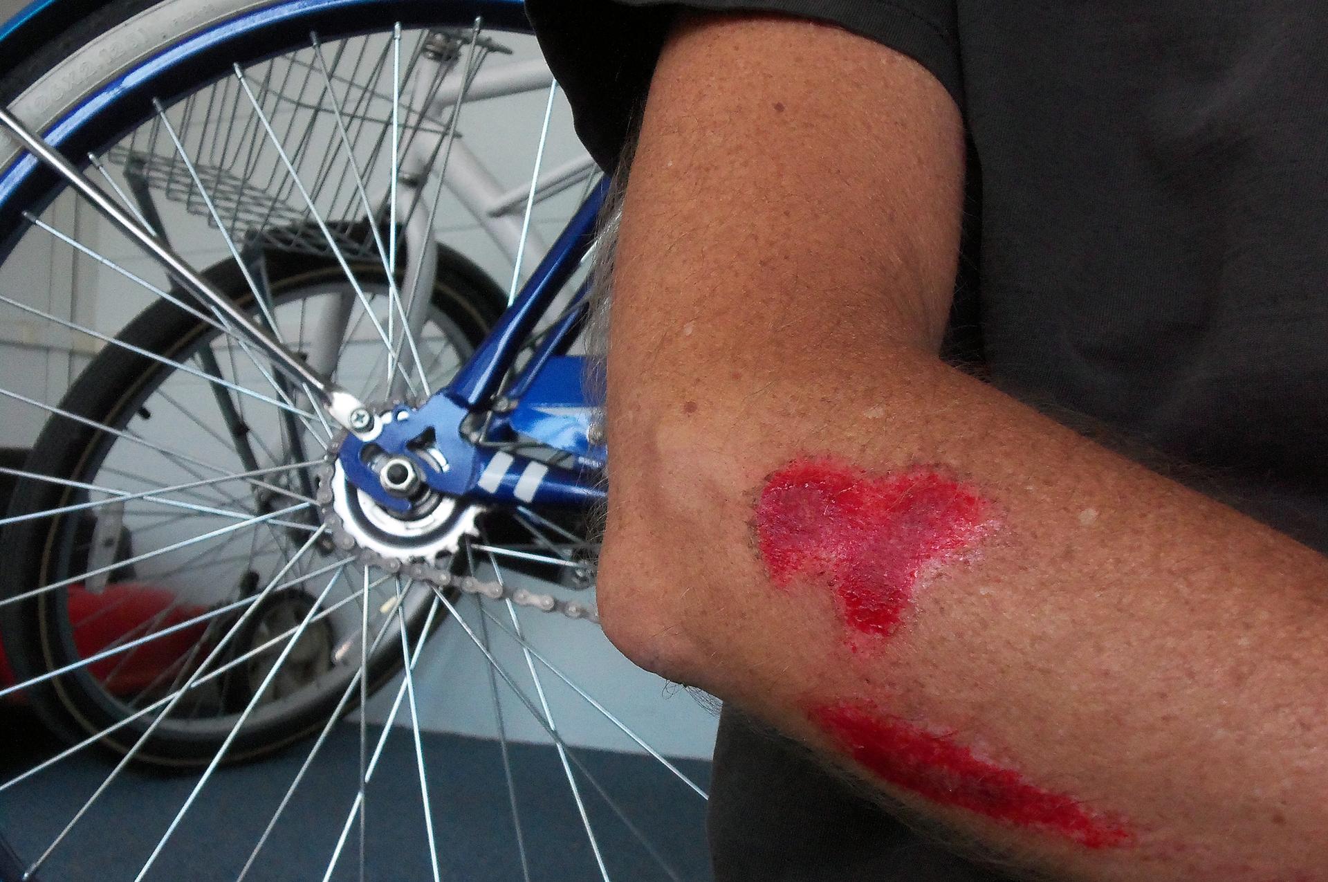 Galeria siedmiu zdjęć prezentujących różne rodzaje ran. Zdjęcie numer jeden przedstawia otarcie skóry. Zbliżenie prawej ręki. Na przedramieniu tuż poniżej łokcia zaczerwienione otarcia skóry. Wtle zdjęcia stojące rowery.