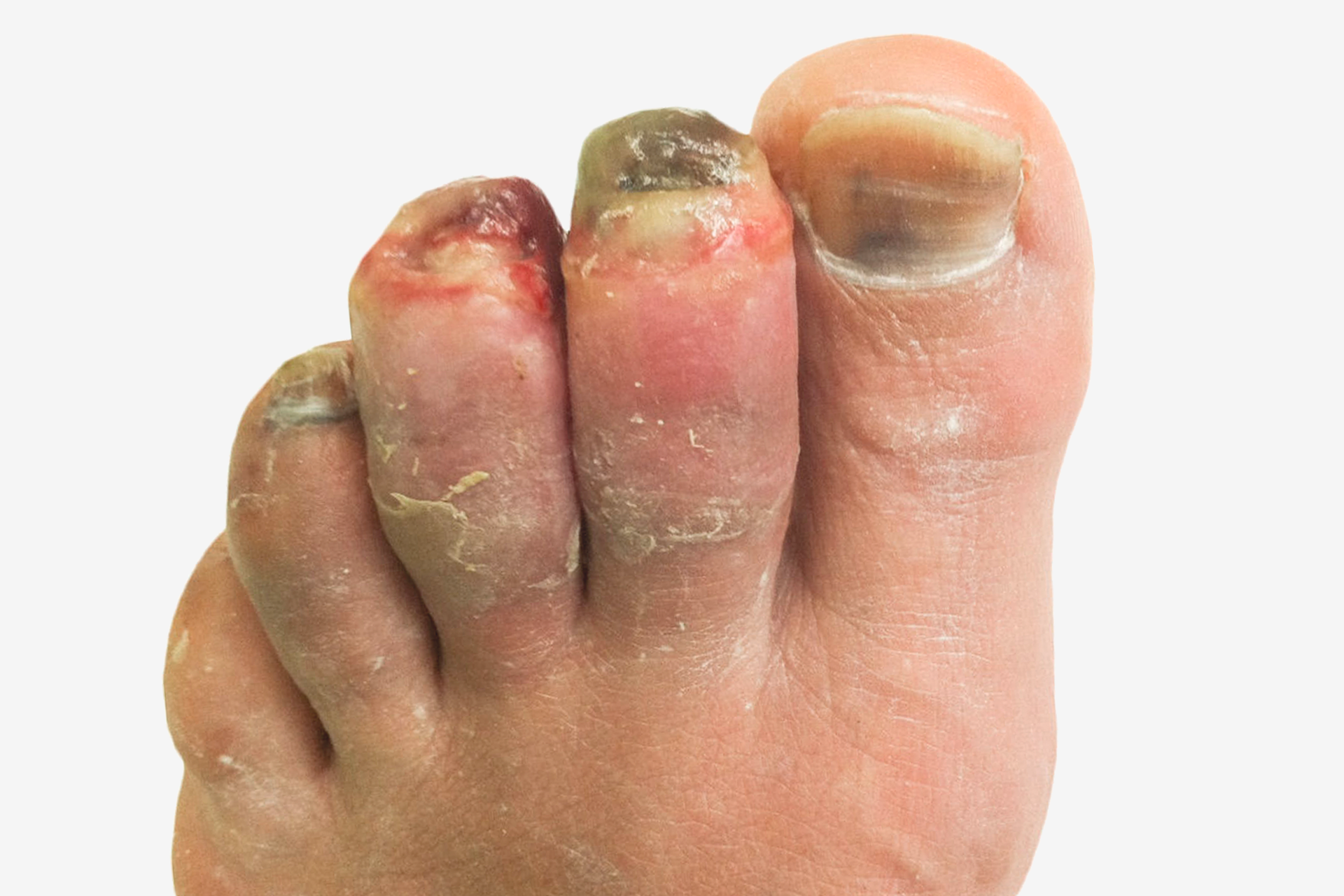 Zdjęcie po prawej to palce stóp zodmrożeniem III stopnia. Palce stopy pokryte są fioletową skórą na całej długości. Palce są opuchnięte. Paznokcie czarne. Okolice wokół paznokci pokryte krwią. Paznokieć dużego palca pokryty jest czarnymi plamami.