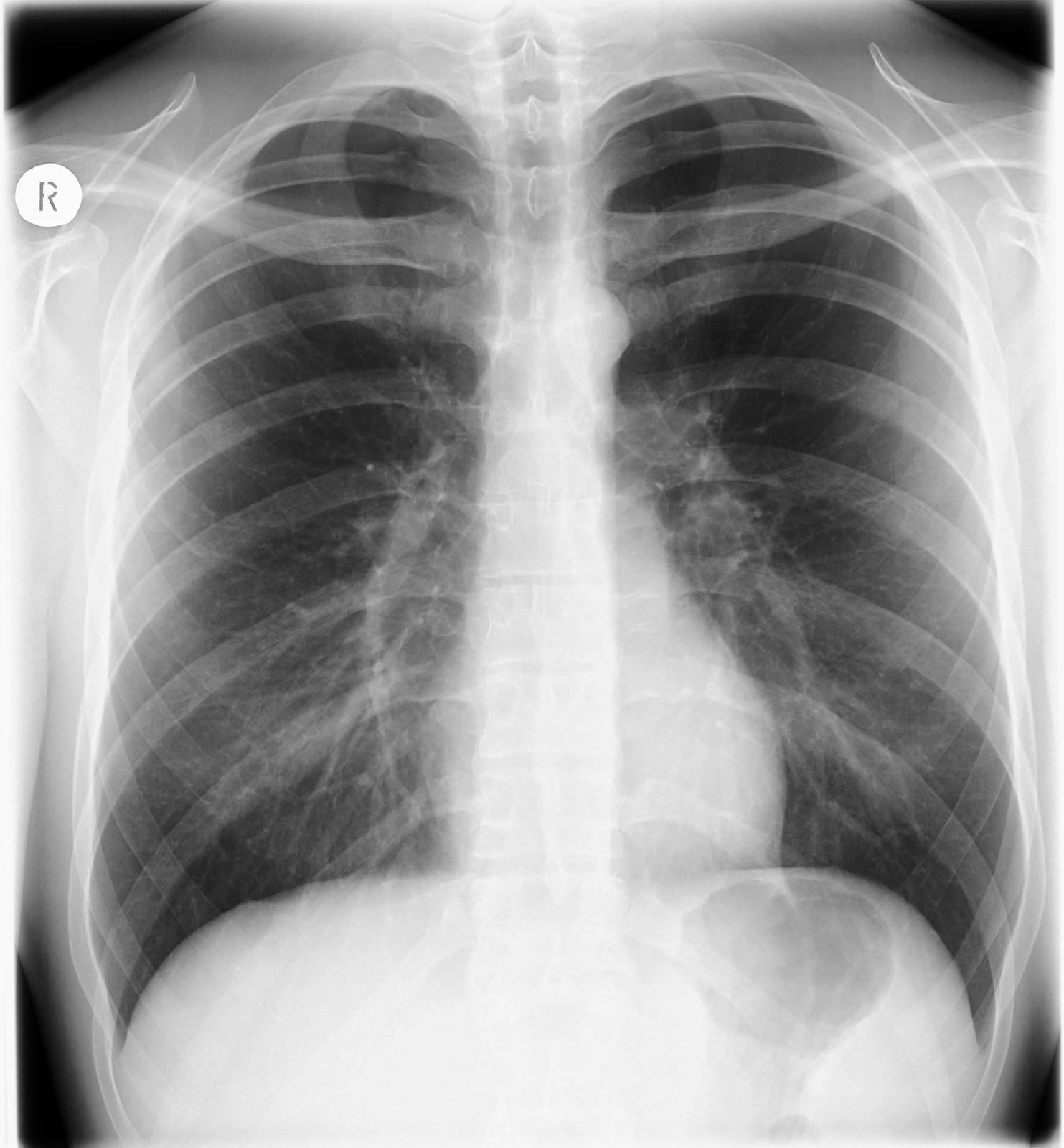 Fotografia przedstawia obraz prześwietlenia płuc, czyli rentgenogram. Na szarym zdjęciu jaśniejsze poziome paski to kości obojczyków iżeber. Wśrodku trójkątny zarys serca, pod nim grube białe narządy pokarmowe. Lekko zarysowane drzewkowate oskrzela.