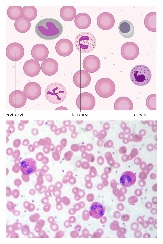 Dwie ilustracje. Ugóry schematyczny rysunek składników krwi. Wjasnym prostokącie kilkanaście okrągłych, różowych komórek zjaśniejszym środkiem, symbolizujących erytrocyty. Okrągłe komórki nakrapiane wśrodku zrozgałęzionym, fioletowym jądrem to leukocyty. Jasne, kropkowane tło oznaczono jako osocze.Poniżej znajduje się obraz mikroskopowy krwi zlicznymi małymi erytrocytami itrzema większymi, ciemniejszymi leukocytami.