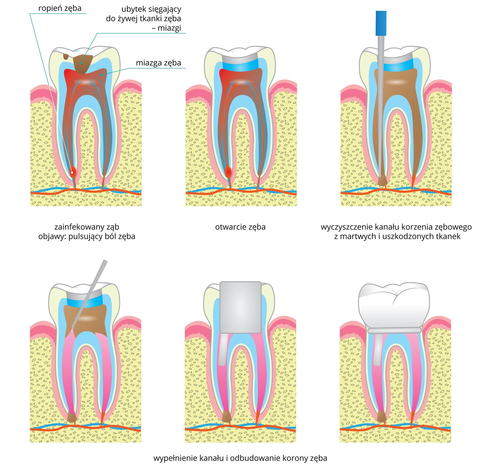 Na ilustracji znajduje się wdwóch rzędach 6 rysunków zęba, przedstawiających kolejne etapy leczenia ropnia. Wlewym górnym rogu ukazano zainfekowany ząb. Na szkliwie są brązowe plamki, czyli ubytki. Jeden znich sięga do żywej tkanki zęba – miazgi. Na czerwono zaznaczono bolesny stan zapalny miazgi, awlewym korzeniu zęba ropień. Środkowy rysunek przedstawia otwarcie zęba: wkoronie zęba dentysta usunął część szkliwa zubytkami. Następnie do korzenia zęba zropniem wprowadził szaro – niebieskie narzędzie, którym usunął martwe tkanki. Wdolnym rzędzie zlewej przedstawiono na różowo wypełnienie kanału zęba, wnastępnym szarym czworokątem oznaczono odbudowanie korony zęba. Ostatni rysunek przedstawia wyleczony ząb.