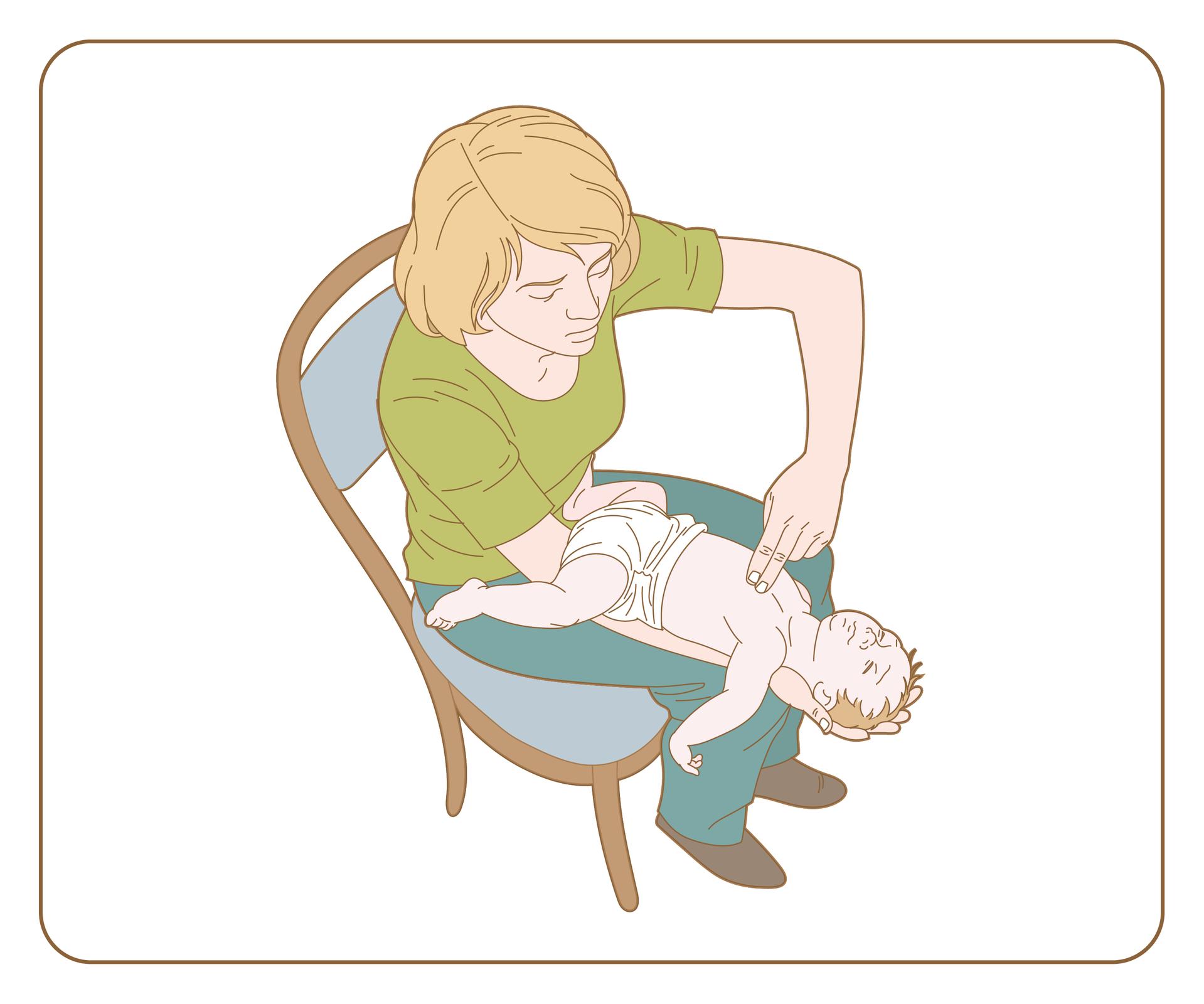 Galeria 1 składa się zdwóch ilustracji ułożonych poziomo obok. Druga ilustracja przedstawia kobietę siedzącą na krześle. Widok zgóry. Nogi razem. Na lewej nodze kobieta ułożyła lewe przedramię. Na przedramieniu leży niemowlę głową skierowane wdół. Niemowlę leży na plecach. Głowa niemowlęcia wystaje poza kolano kobiety. Kobieta przytrzymuje głowę niemowlaka wswojej dłoni. Prawą rękę kobieta unosi tak aby dwoma palcami dotknąć iuciskać klatkę piersiową dziecka.