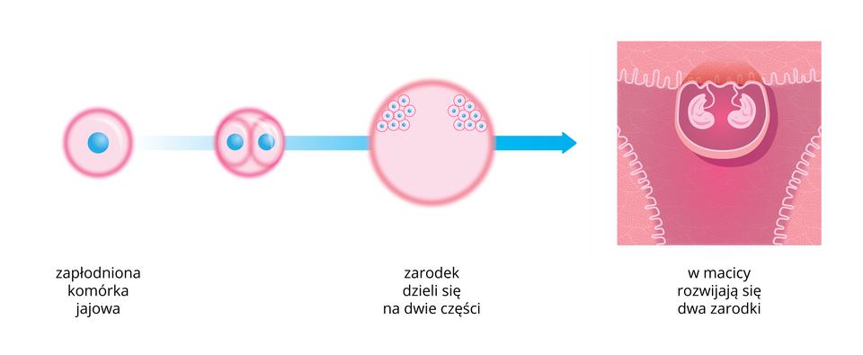 Ilustracja przestawia schemat rozwoju ciąży bliźniaczej jednojajowej. Zlewej różowa komórka jajowa zbłękitnym jądrem. Strzałka prowadzi do koła, oznaczającego zarodek, zdwoma takimi komórkami. Kolejne różowe koło zdwoma skupieniami komórek ugóry oznacza rozwój dwóch zarodków, powstałych zpodziału zygoty na dwie części. Na końcu ukazano schematycznie, że wmacicy wjednym jaju płodowym rozwijają się dwa identyczne genetycznie zarodki.