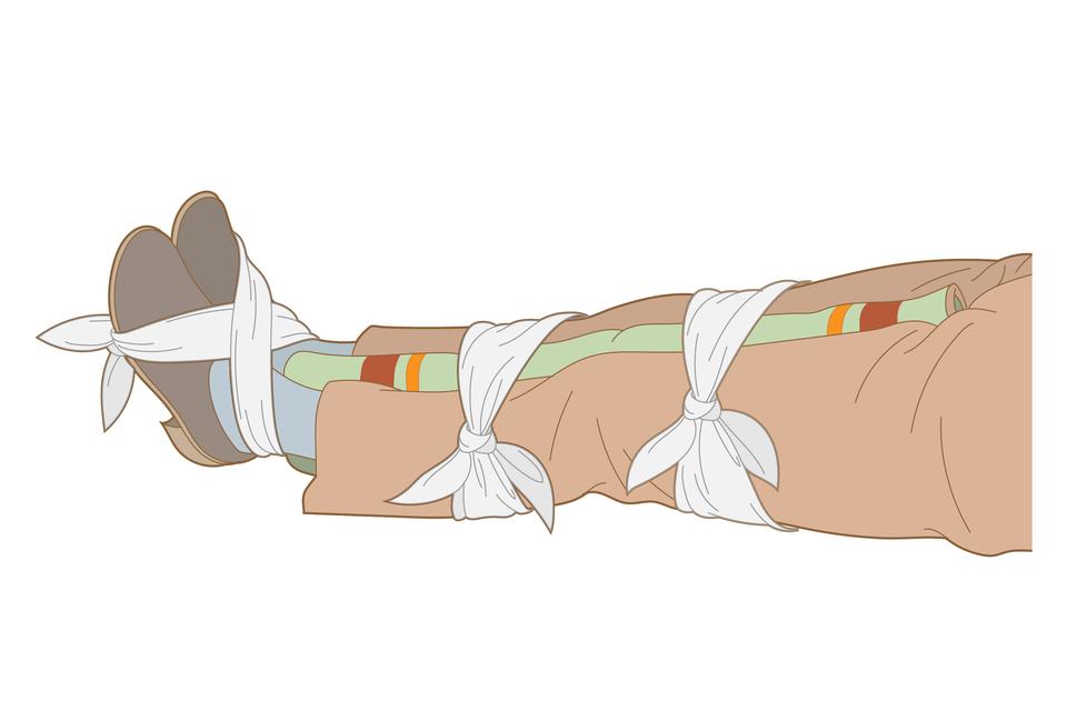 Galeria składa się zsześciu ilustracji prezentującej dwa sposoby unieruchamiania jednej nogi lub obu nóg poszkodowanego. Rysunek trzeci przedstawia trzeci etap unieruchamiania za pomocą koca. Na ilustracji poziomo leżące nogi poszkodowanego od pasa wdół, skierowane stopami wlewo. Ubranie kompletne, obie nogi równolegle do siebie. Pomiędzy nogami od stóp do krocza włożony zwinięty koc. Stopy, łydki oraz uda tuż powyżej kolan obwiązane chustami wcelu pełnego unieruchomienia kończyn. Chusta wiążąca stopy przeciągnięta na krzyż przez kostki iśródstopie, zawiązana na podeszwach stóp.