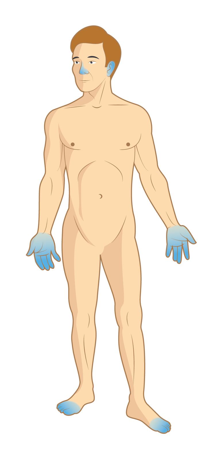 Ilustracja przedstawia mężczyznę bez ubioru. Mężczyzna stoi przodem do obserwatora ilustracji. Części ciała zabarwione na niebiesko wskazują miejsca, które najczęściej ulegają odmrożeniu. Są to: nos, uszy, dłonie oraz palce stóp.