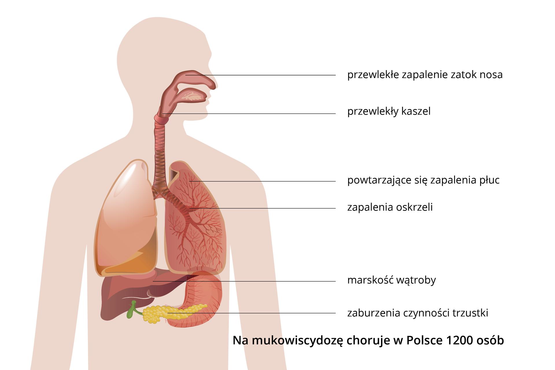 Ilustracja przedstawia liliową sylwetkę człowieka zwrysowanym układem oddechowym. Opisy zboku wskazują miejsca zachorowań iopisują objawy mukowiscydozy.