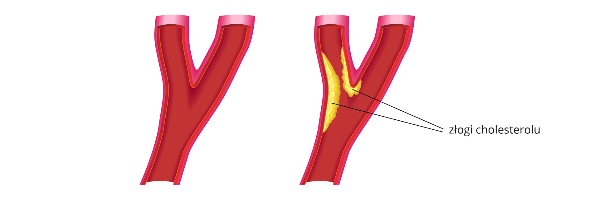 Ilustracja przedstawia schematyczny obraz dwóch tętnic wieńcowych. Tętnice udołu są pojedyncze irozwidlają się wpołowie wysokości na dwie odnogi. Lewa tętnica to przykład zdrowego naczynia. Zkolei prawa jest zwężona wlewej odnodze. Na ściankach tętnicy dostrzegalne są żółte złogi cholesterolu, które zwężają kanał przepływu krwi.