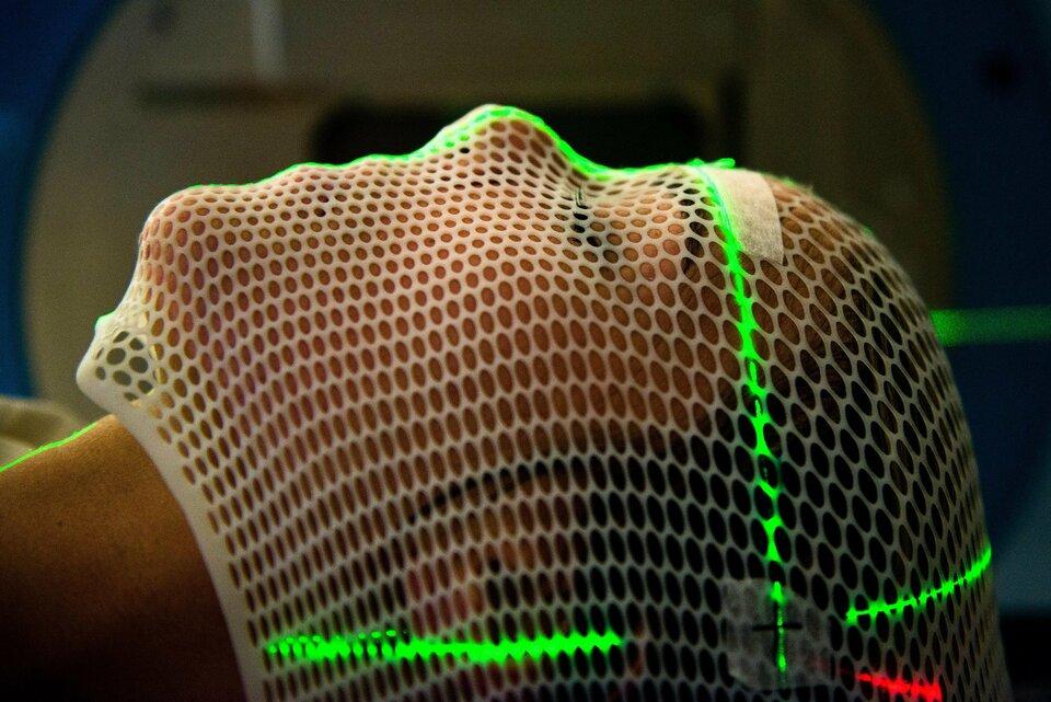 Zdjęcie przedstawia twarz kobiety zprofilu unieruchomioną za pomocą plastikowej siatki na czas przeprowadzania promieniotwórczej terapii nowotworowej. Na siatce widoczny jest też zielony wskaźnik laserowy wkształcie dużego zielonego krzyża wyznaczający punkt na głowie pacjentki, który poddany zostanie precyzyjnemu napromieniowaniu.
