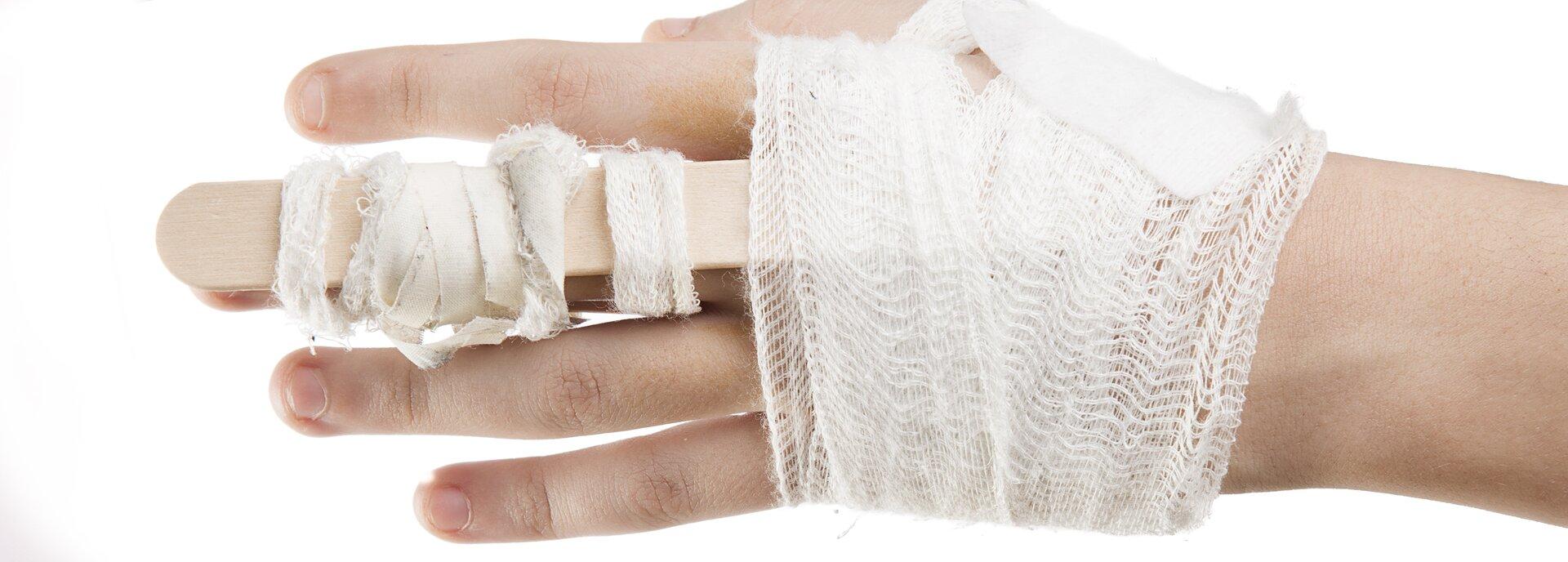 Kolorowe zdjęcie dłoni, wktórej środkowy palec jest usztywniony drewnianym patyczkiem. Dłoń iusztywniony palec są owinięte bandażem.