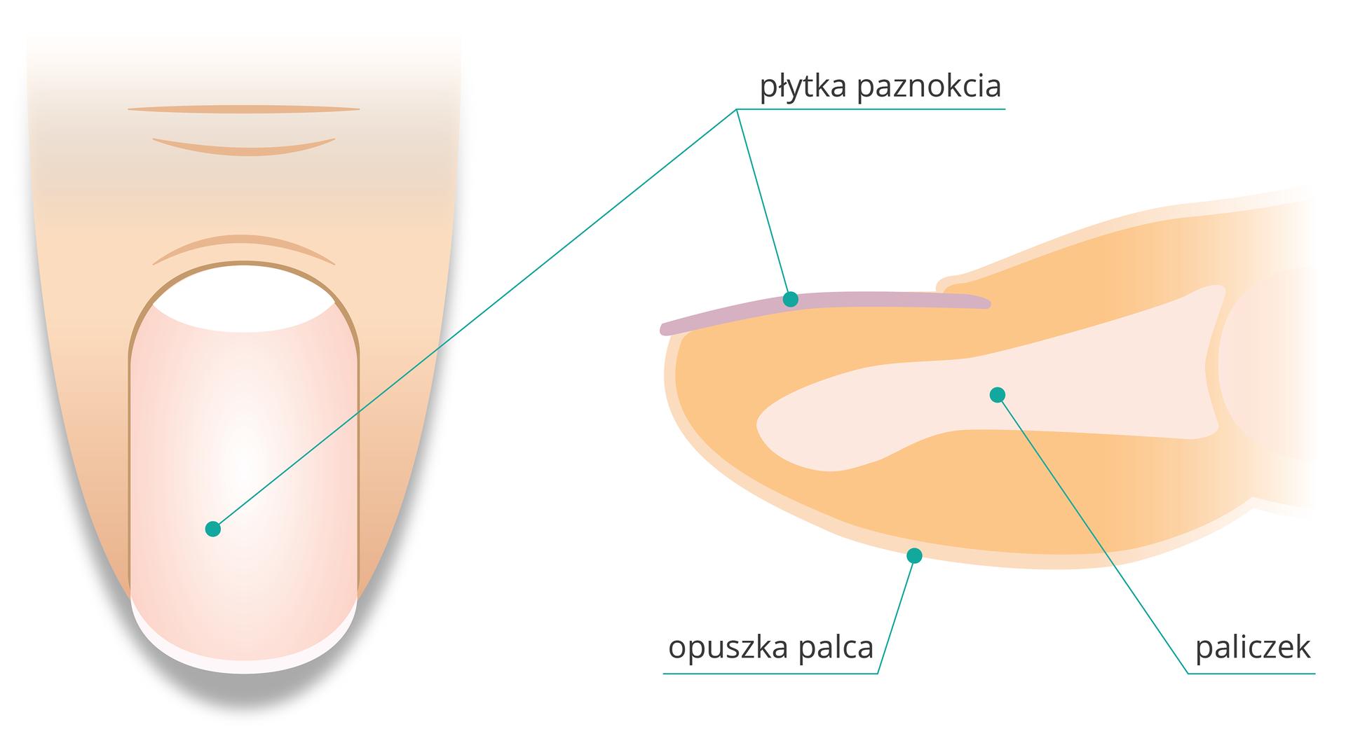 Ilustracja zlewej przedstawia wpowiększeniu palec człowieka wraz zpaznokciem widziany zgóry. Zprawej przekrój poprzeczny przez czubek palca. Wpomarańczowym wnętrzu opuszki palca zaznaczono szarą kość paliczka. Ugóry na opuszce liliowo zaznaczono płytkę paznokcia.