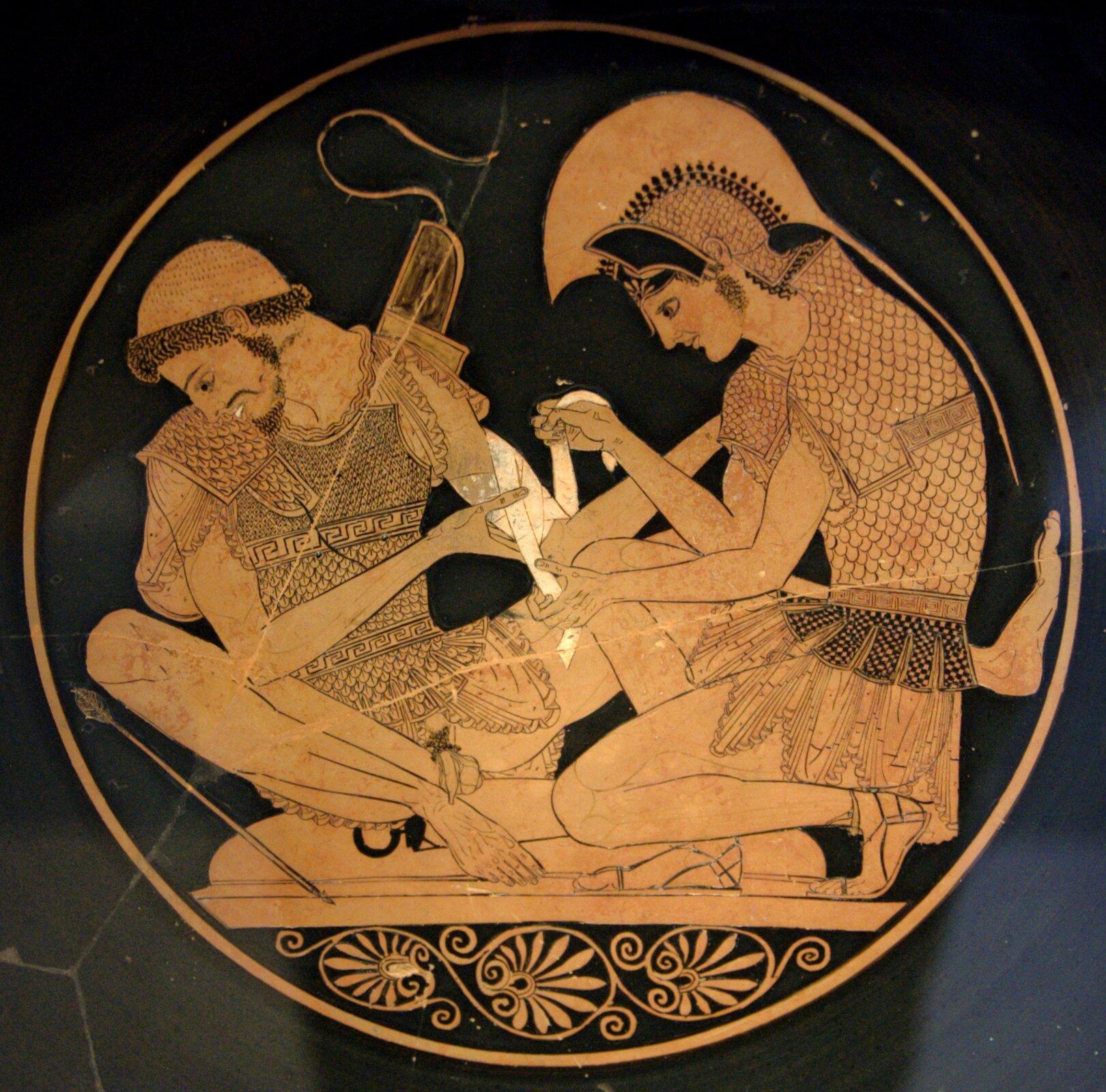 Achilles opatrujący rannego Patroklosa Scena wykonana we wnętrzu czerwonofigurowej czary zVulci Źródło: Sosias, Achilles opatrujący rannego Patroklosa, ok. 500 r. p.n.e., British Museum, Londyn, domena publiczna.