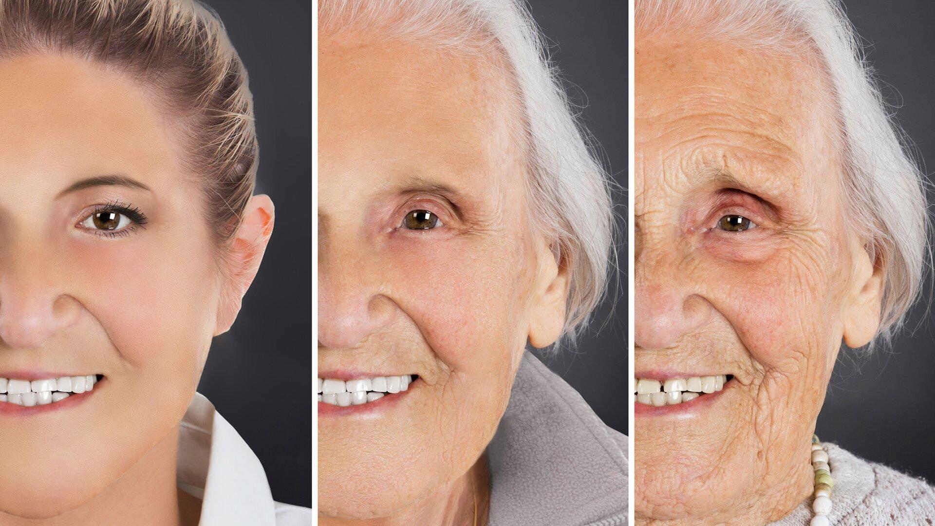 Ilustracja przedstawia trzy fotografie ułożone wpionie obok siebie. Fotografie pokazują jak zwiekiem zmienia się wygląd skóry. Zdjęcia przedstawiają fragmenty twarzy tej samej kobiety wykonane wróżnym wieku. Na zdjęciu pierwszym od lewej widzimy twarz młodej kobiety. Ma ciemne zaczesane do tyłu włosy igładką skórę. Zdjęcie środkowe przedstawia uśmiechniętą twarz tej samej osoby ale wśrednim wieku. Ma siwe włosy ina twarzy widoczne są zmarszczki wkącikach oczu iust. Zdjęcie trzecie od lewej przedstawia tę samą kobietę ale znacznie starszą. Na uśmiechniętej twarzy widoczne są głębokie zmarszczki.