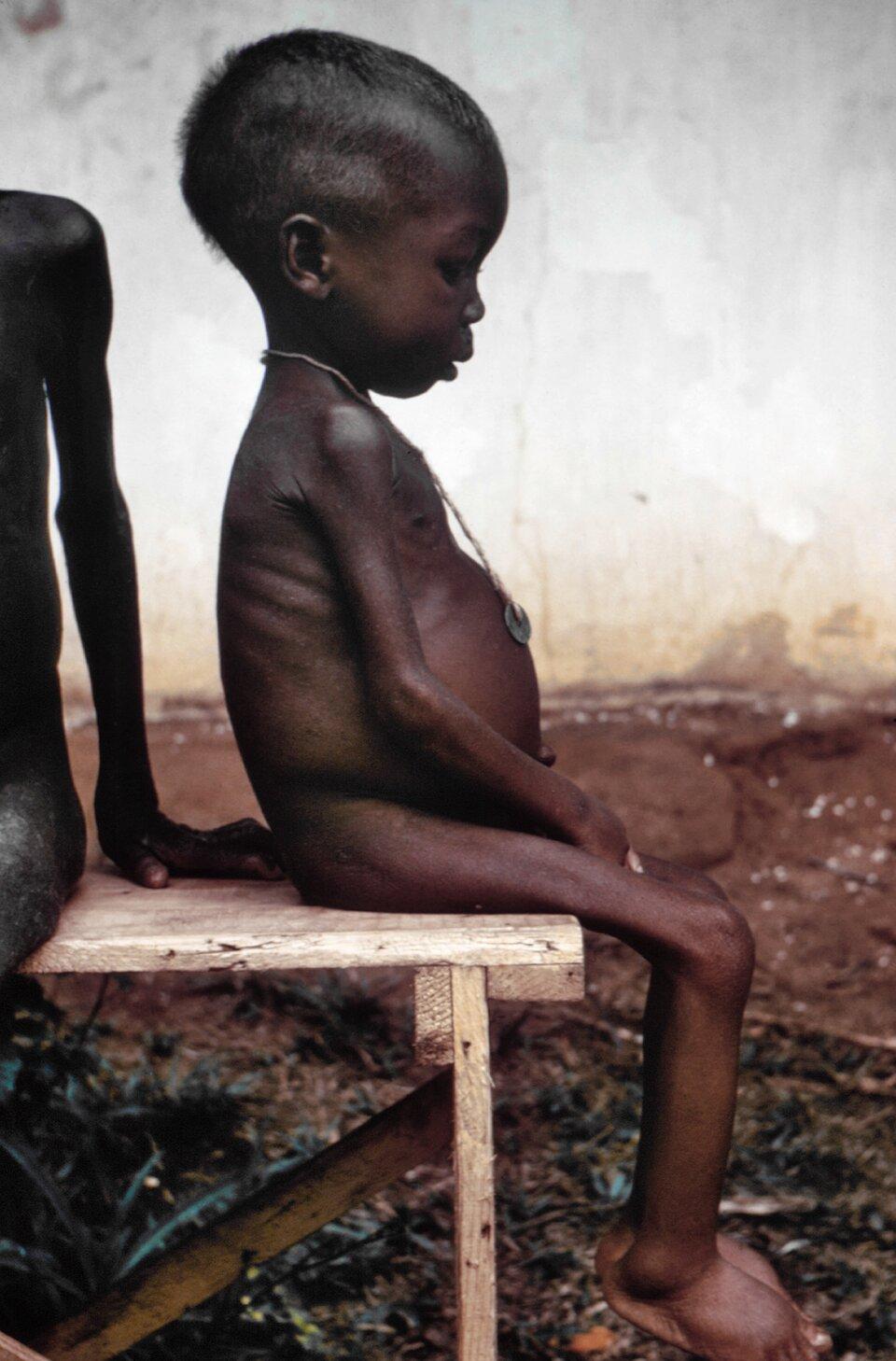 na zdjęciu mała, smutna dziewczynka siedząca na drewnianym stołku, dziecko cierpi zgłodu