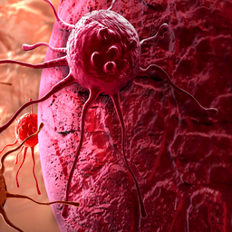 Choroby nowotworowe człowieka