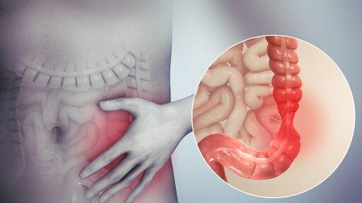 Podstawowe badania diagnostyczne wprofilaktyce ileczeniu chorób układu pokarmowego człowieka