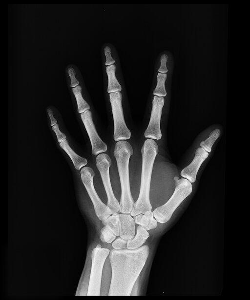 0840 Widmo promieniowania lampy rentgenowskiej
